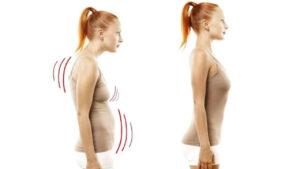 Medical Fisio Catania | Disordini posturali